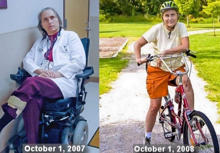 Physician Terry Wahls reversed her multiple sclerosis after adopting a low-carb, high-fat ketogenic Paleo diet. (Photos: Dr. Terry Wahls)