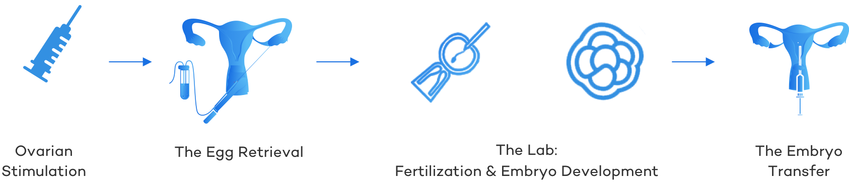 IVF Process Overview